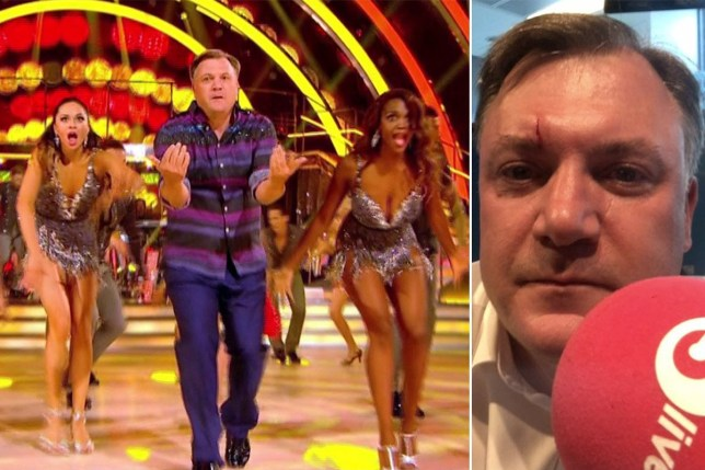 Ed Ball has already got his first injury - but Strictly Come Dancing's not to blame Comp of Ed on Strictly and injury photo posted on his Facebook page