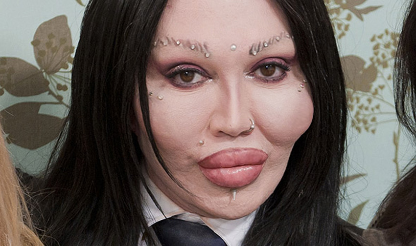 This is what Pete Burns looked like before all of the surgery
