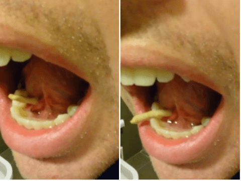 Watch this man push a 'salivary stone' out of his mouth and be changed for life