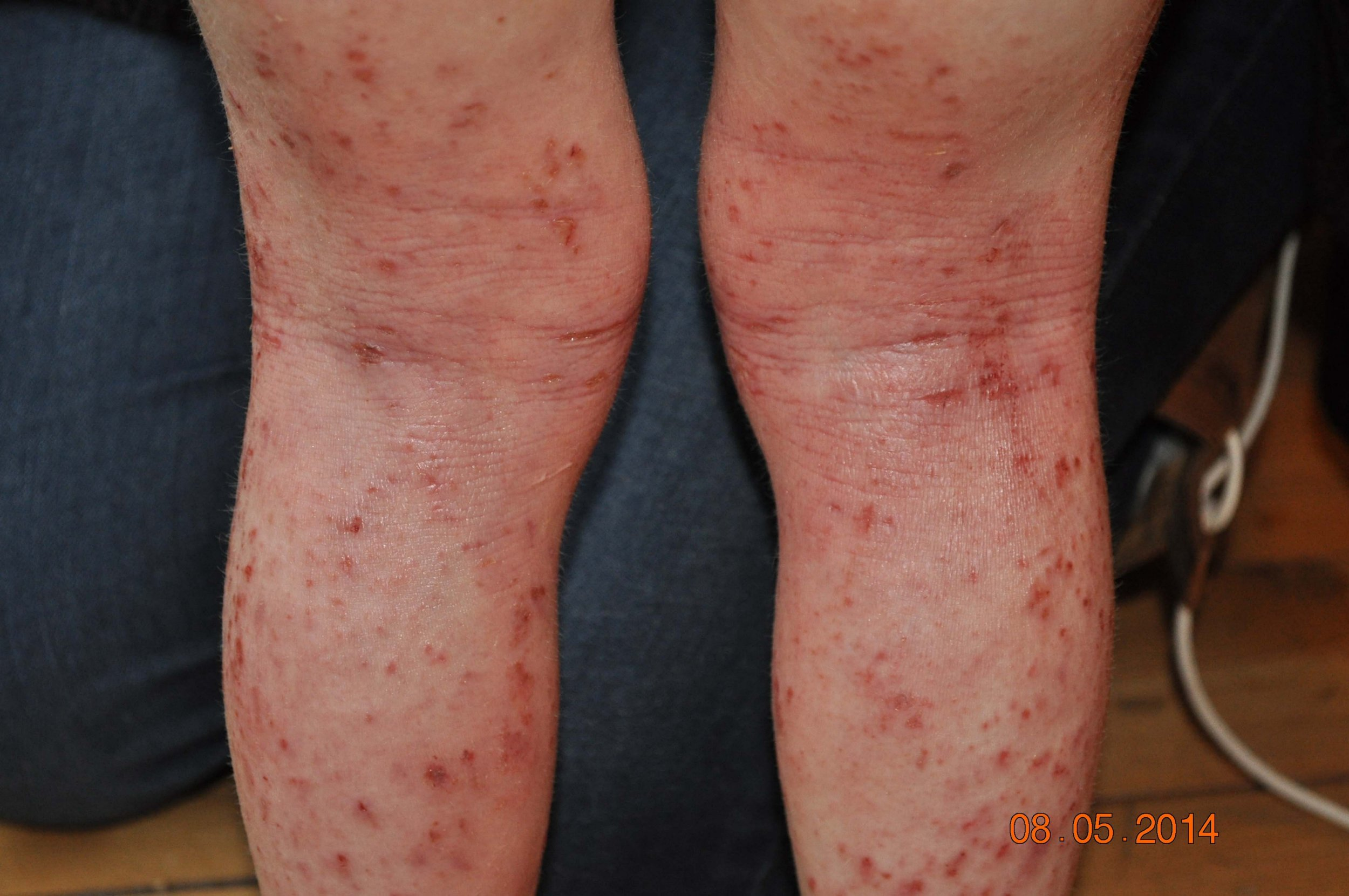 Boy  7  Suffered Such Severe Eczema He Couldn U0026 39 T Even Hug