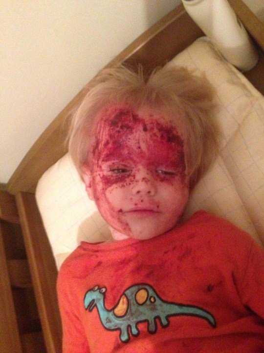 PIC FROM MERCURY PRESS (PICTURED: OWEN RICHARDS IN 2013 WITH ECZEMA HERPETICUM, A FLESH EATING VIRAL INFECTION) A tot who suffered from a severe form of flesh-eating eczema looked like half his face has been BURNT OFF. Owen Richards, seven, first developed eczema at six weeks old and his condition rapidly deteriorated, leaving his body covered in bloody and weeping sores. And despite trying steroids and emollient creams the totís parents Cath Richards, 40, and Andrew Richards, 43, from Hale, Cumbria, watched in horror as his conditioned worsened. Owenís skin was so sore and itchy he suffered ëextreme fitsí of screaming and scratching and he could not go to the toilet, get dressed or lie in bed without screaming from the pain. Physiotherapist Cath said her boyís agony was so distressing for her, businessman Andrew and older son Oliver, eight, that every day became ëtortureí. SEE MERCURY COPY