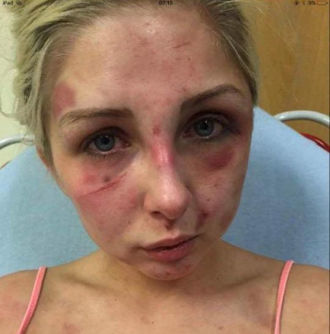 A DOMESTIC abuse victim has revealed sickening pictures of the horrific injuries she suffered at the hands of her former partner.nnBrave Kelsie Skillen was beaten to a pulp by her vicious boyfriend James McCourt, 19, at the home they shared together.nnThe graphic pictures show her injuries after being subjected to a beating lasting four hours in June this year.nnKelsie, 19, a make up artist from Bishopbriggs, near Glasgow, was rushed to hospital following the attack which left her with cuts to her face and covered in bruises.nnMcCourt has been remanded in custody to await sentencing after he admitted the brutal assault during an appearance at Glasgow Sheriff Court.nnKelsie said she wanted to warn other people about McCourt so that they don't suffer the same fate as her.