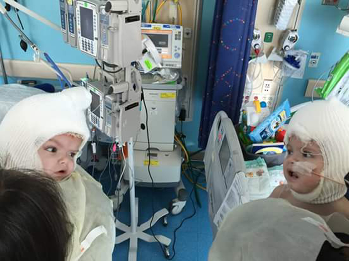 Conjoined twins see one another for first time after operation to separate them