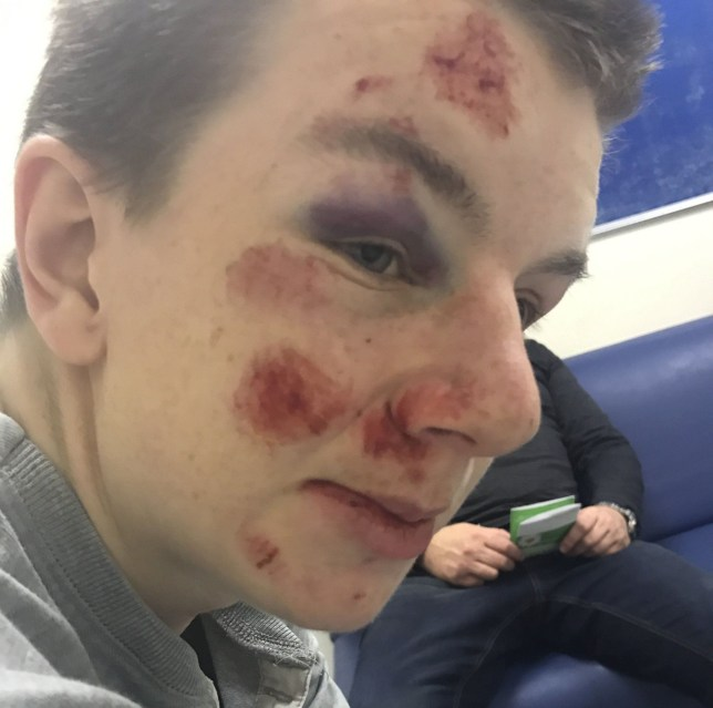 Teens With Autism Brain Injuries And >> Autistic Teenager Left With Bad Facial Injuries After Being Mugged