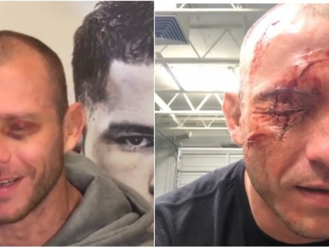 Donald Cerrone explains a crazy horse caused his gory eye injury ahead of UFC 206 Matt Brown clash