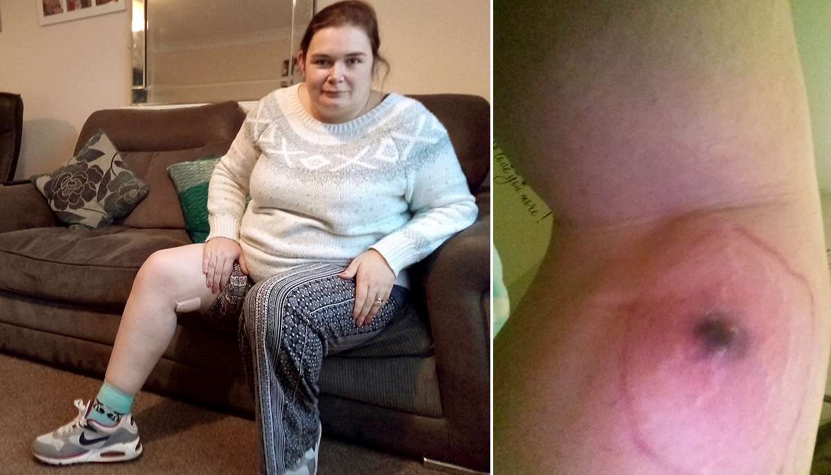 Woman nearly lost leg after spider bite left her with huge hole in thigh
