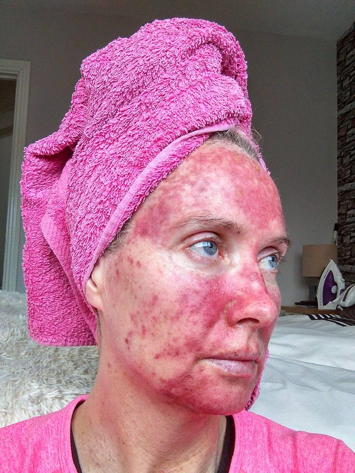 Sunbed damage credit Mags Murphys Journey/Facebook