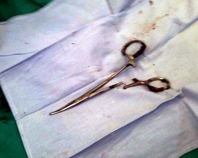 This picture taken on December 31, 2016 shows a pair of scissors which was removed from a patient's abdomen after being left behind during a surgery 18 years ago, at a clinic in the northern Vietnamese city of Thai Nguyen. Ma Van Nhat, now 54, underwent surgery in 1998 after a car accident and only recently discovered that doctors had left an unwelcome gift behind when they closed him up. / AFP PHOTO / Vietnam News Agency / VIETNAM NEWS AGENCYVIETNAM NEWS AGENCY/AFP/Getty Images