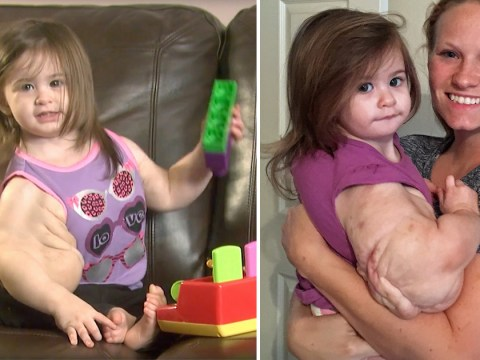 Toddler dubbed 'Baby Hulk' after watermelon-sized tumors make her look like a bodybuilder