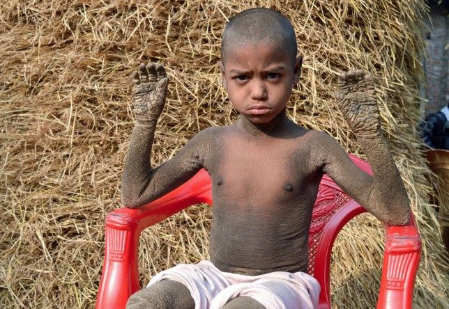 PIC FROM Caters News - (PICTURED: Mehendi Hassan) - A Bangladeshi boy has been shunned by the society because of an acute skin disease that is slowly turning him into a stone. Mehendi Hassan, eight, does not have tender hands like kids his age. His legs also do not bear scars from playing football or cricket like the boys in his village.Except his cherubic face, the little boy is painfully covered in scaly skin that has robbed him of his childhood. His whole body has thick layers of skin that makes it difficult for him to even walk or touch anything. Hassan struggles to wear clothes as even slightest of friction to his skin is excruciating and stays at home all day because his appearance terrifies other children in the village. SEE CATERS COPY.