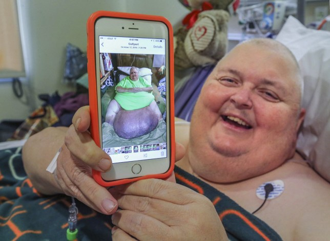 In this Feb. 2, 2017, photo, Roger Logan holds up a smartphone that shows a photo of him with a 130-pound tumor before a surgery to remove it at Bakersfield Memorial Hospital in Bakersfield, Calif. Logan, a Mississippi man who was told he was simply fat, has had the 130-pound tumor removed during an operation in Bakersfield. (Henry A. Barrios/The Bakersfield Californian via AP)