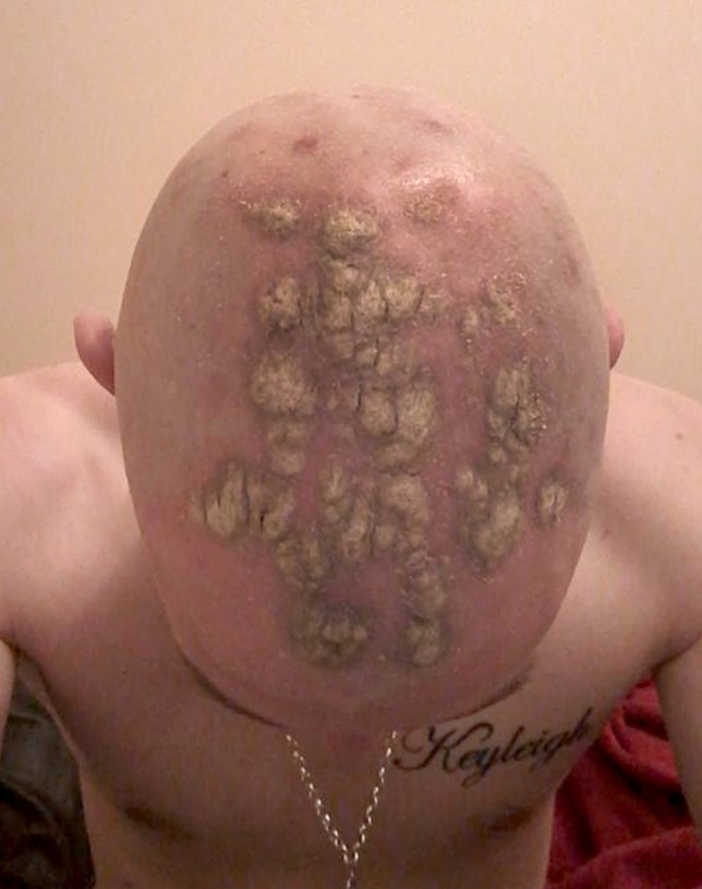 Father left bald after 'using VO5 hairwax that burned his