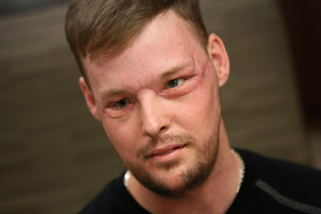 "In this Jan. 24, 2017, photo, face transplant recipient Andy Sandness attends a speech therapy appointment at Mayo Clinic in Rochester, Minn. He wasn't allowed to see himself immediately after the surgery. His room mirror and cell phone were removed. When he finally did see his face after three weeks, he was overwhelmed. ""Once you lose something that you've had forever, you know what it's like not to have it. ... And once you get a second chance to have it back, you never forget it."" Just having a nose and mouth are blessings, Sandness says. ""The looks are a bonus."" (AP Photo/Charlie Neibergall)"