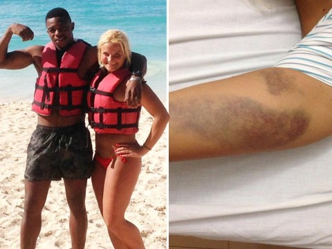 Couple left with serious injuries after balcony collapses on dream holiday