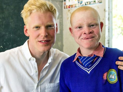 Albinos are being hunted in Africa and 'harvested' for their body parts