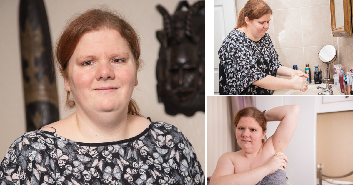 Woman with rare condition Trimethylaminuria always smells