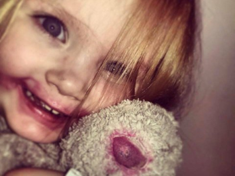 Girl, 6, became 'cocooned' in melting blanket after lamp fell on her bed