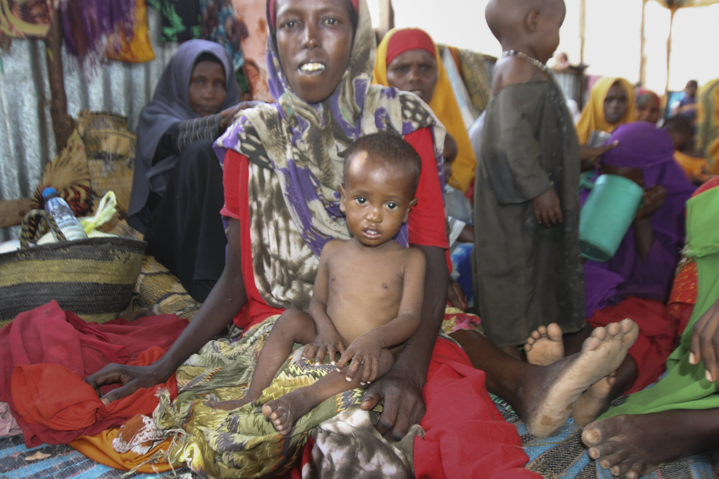 Millions of children are starving as the world does nothing, United Nations warn