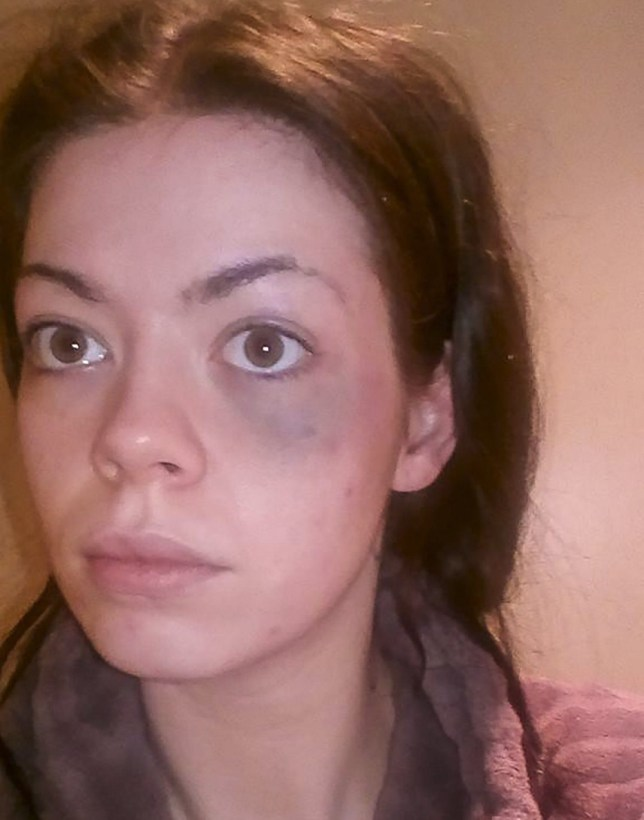 PIC FROM MERCURY PRESS (PICTURED: ANNASTAZIA MERRETT, 25 BRUISED FACE AFTER BEING HIT TWICE BY AN UBER DRIVER) An Uber driver has been suspended after a mum was allegedly assaulted and her one-year-old daughter was subjected to racist abuse during a journey in London.   Annastazia Merrett claims she was hit twice by the male driver after he refused to help her open a gate after dropping her off in Elephant and Castle on Saturday night.   The 25-year-old also alleged that the Asian man threw a set of keys in mixed-race Savannah's face and referred to her father as 'a slave'. SEE MERCURY COPY