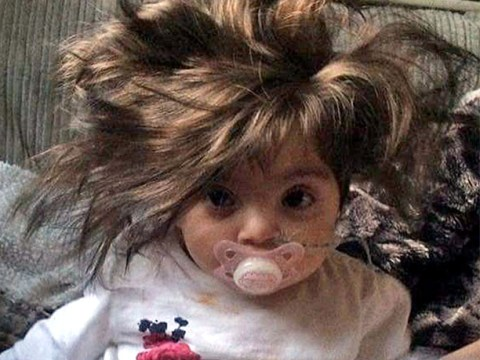 No, this eight-month-old baby is not wearing a wig