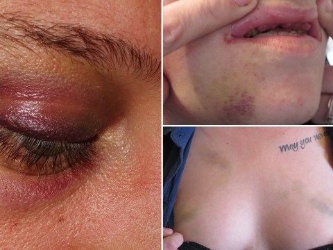 Group of lesbians brutally beaten by 15 homophobic men outside nightclub