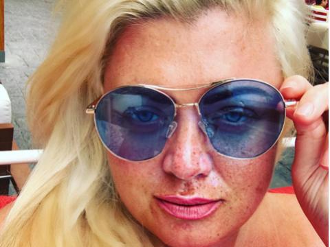 Worried fans plead with Gemma Collins to wear suncream following sunburn selfies