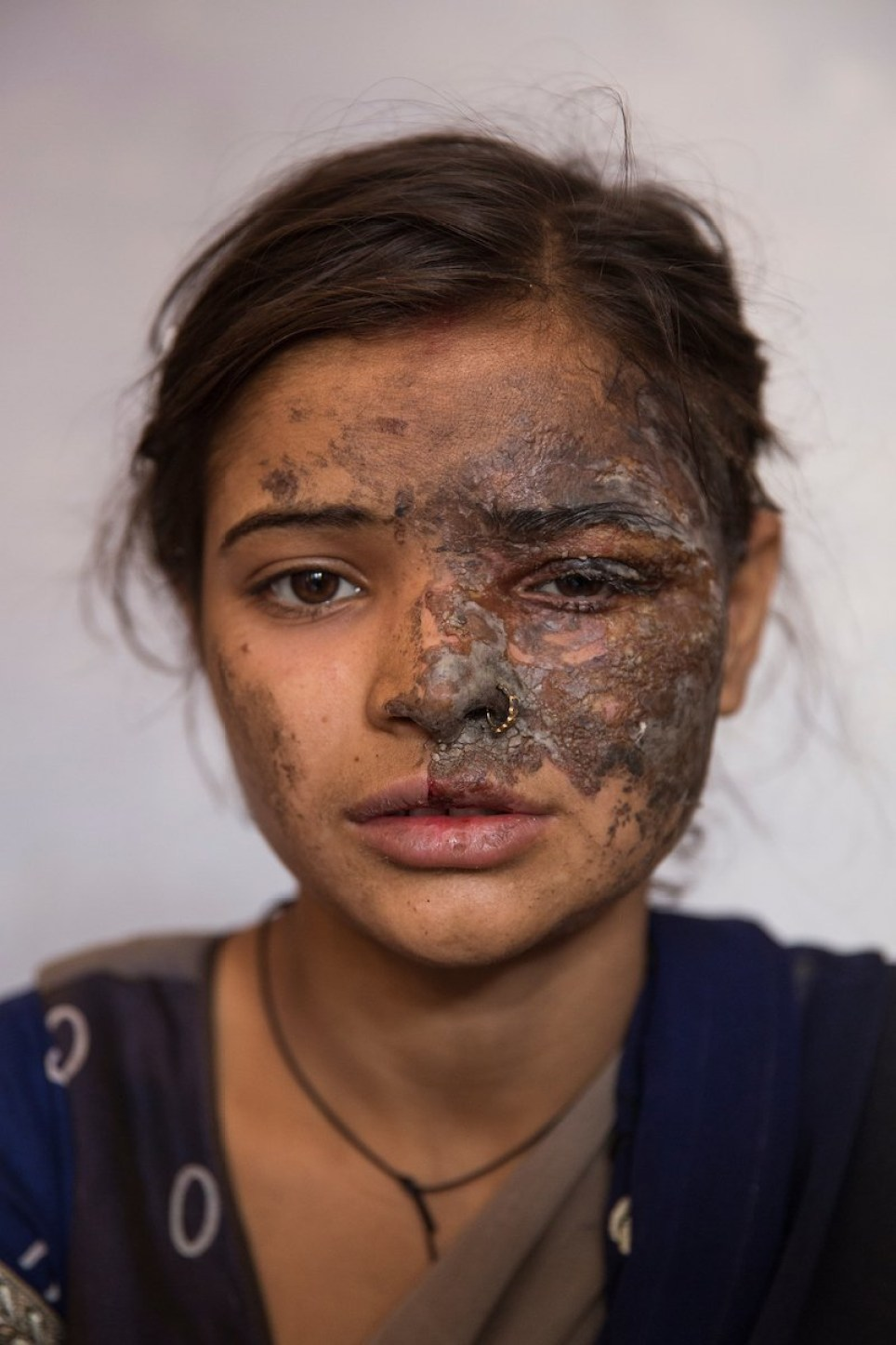 Dad threw acid on his own daughter when she reported him for