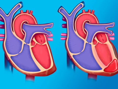 Heart Rhythm Week: What are the symptoms of arrhythmia? Heart conditions explained