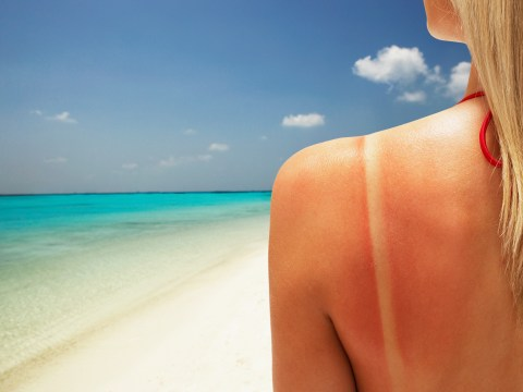 How long does sunburn take to heal and how to get rid of it?