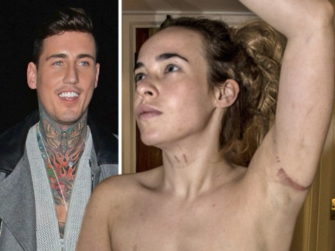 New pictures of Stephanie Davis reveal shocking extent of injuries after Jeremy McConnell claims she's pregnant