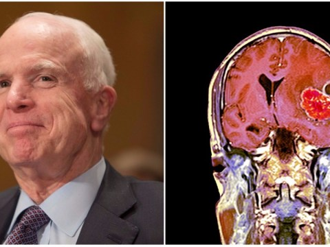 What is glioblastoma? How serious John McCain's brain tumor is