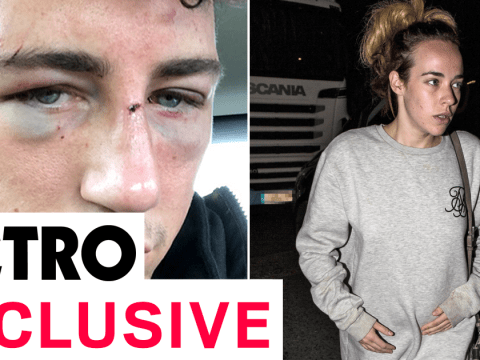 Jeremy McConnell confirms Stephanie Davis pregnancy and truth behind horrific hotel fight