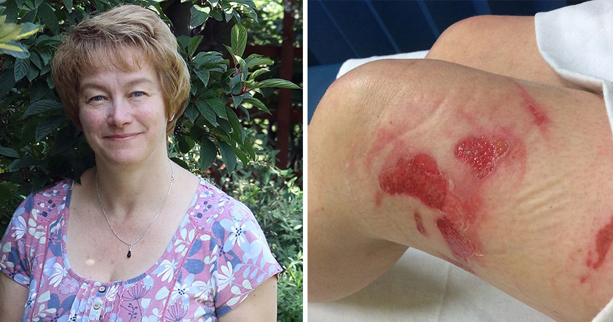 Nurse suffers serious burns after Ryanair tea is spilled over her leg
