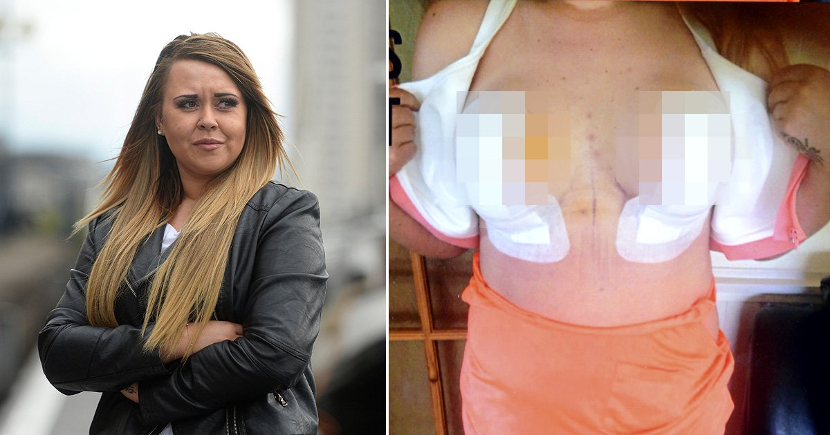 Botched boob lift left young woman with 'rotting nipples'