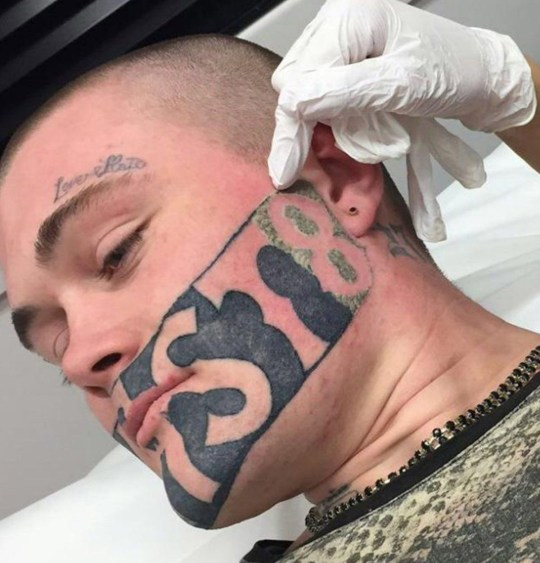 Laser tattoo removal: How does it work, how long does it ...