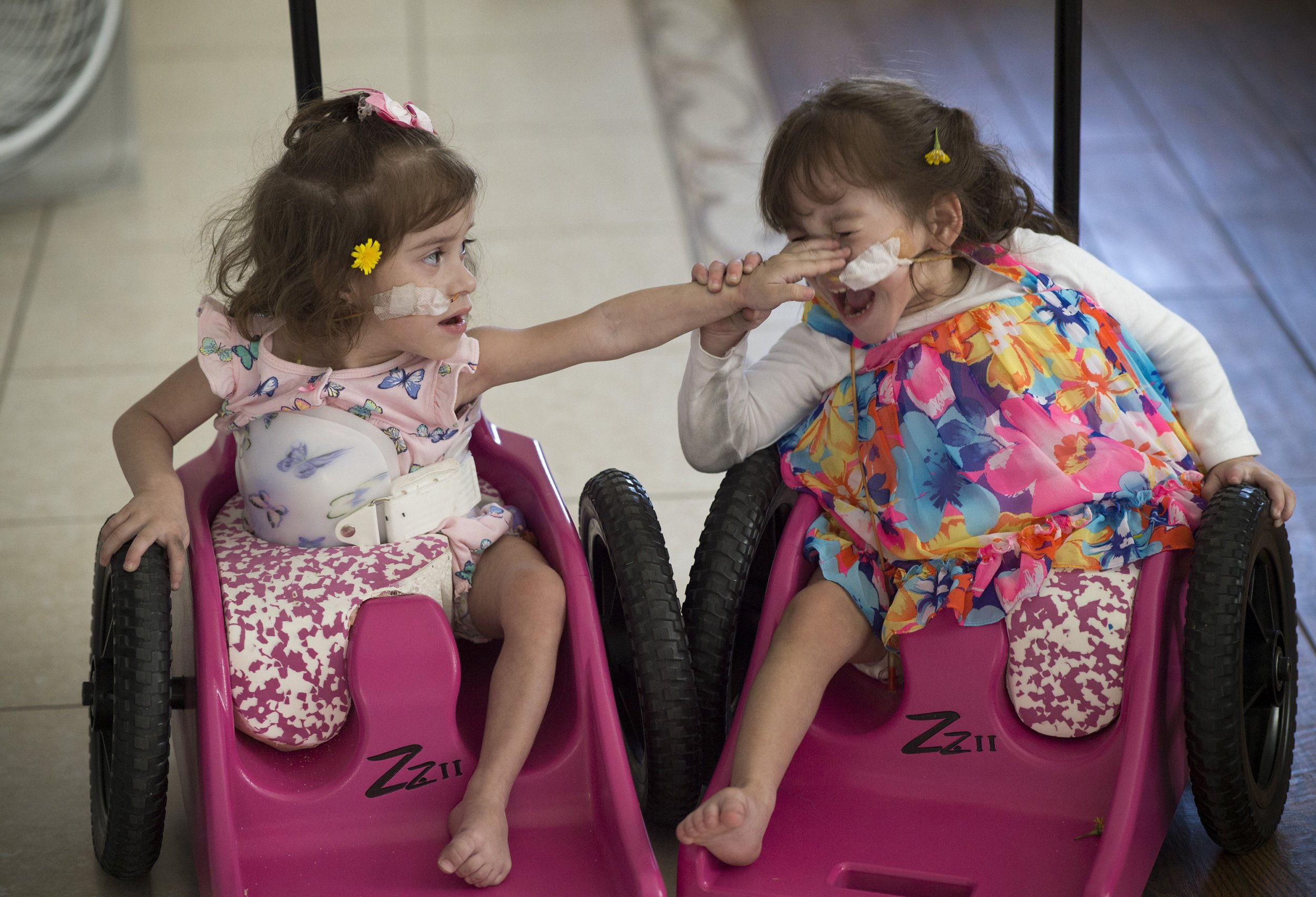 Formerly conjoined twins 'thrive' months after separation surgery
