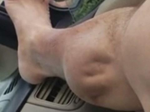 Man's extreme cramp looks like alien trying to burst through his leg