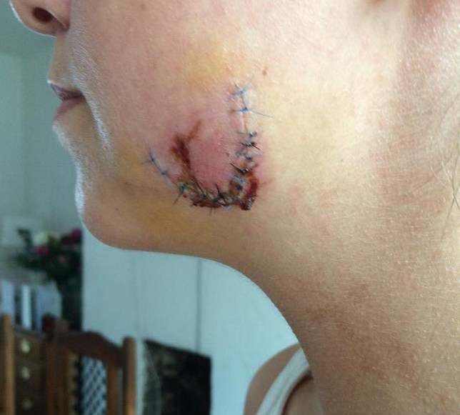 Woman has chunk bitten out of her face after man put her in a headlock in Kingston