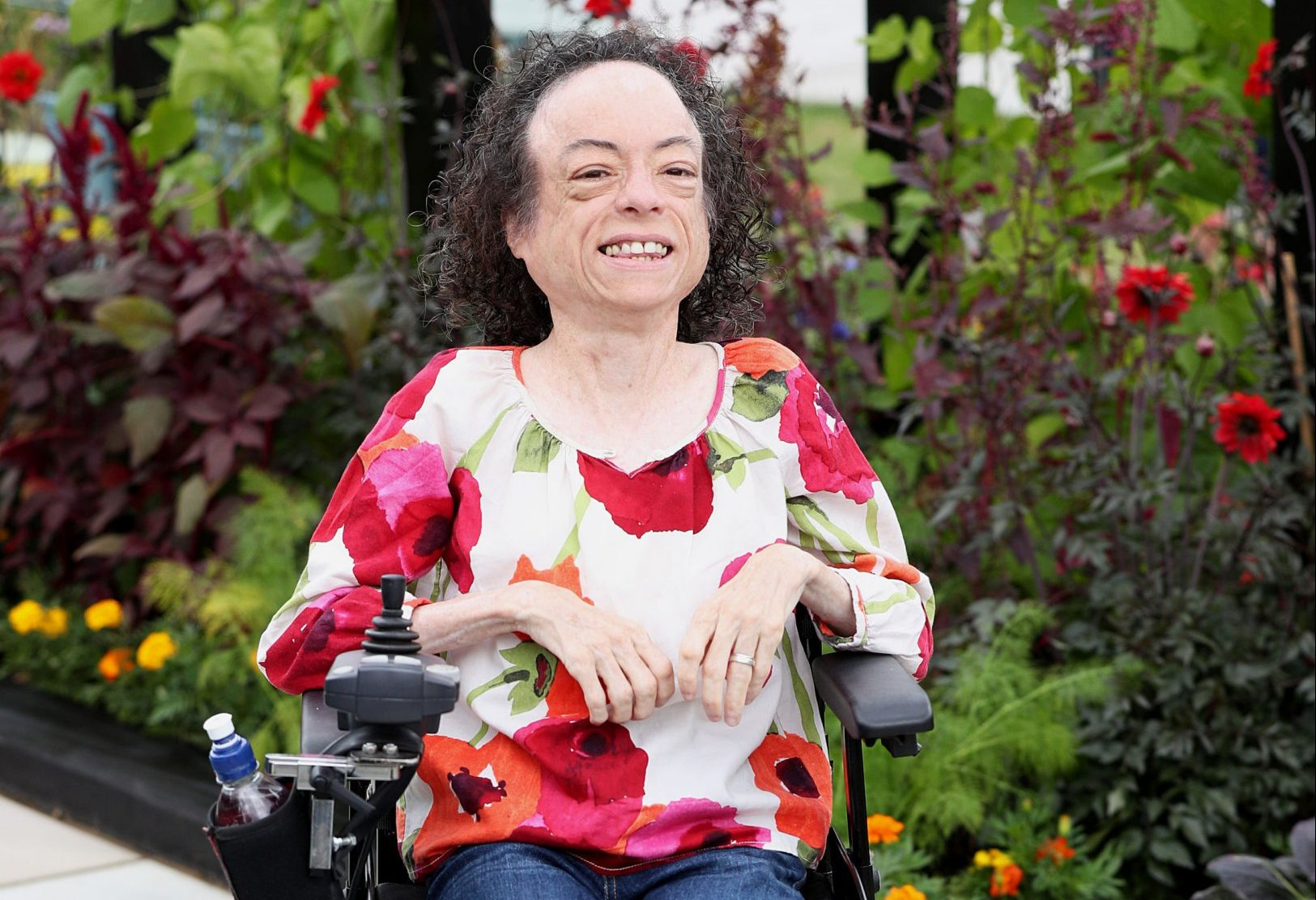 Silent Witness actress Liz Carr says her attack was 'frightening' but she is 'relatively unscathed'