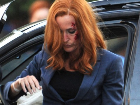 Gillian Anderson is spotted bruised and bloodied as she films action-packed car crash scene for The X-Files return