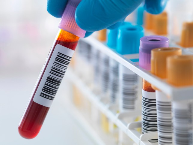 Tools to cure HIV in reach as London clincic sees fall in diagnoses