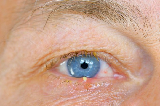 How to get rid of a stye – what to do and what NOT to do | Metro News