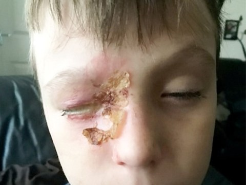 Boy, 11, blinded by stray rocket at public firework display