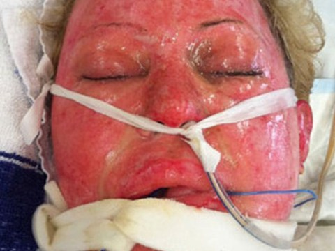 Woman reveals how she recovered from being burned by a jealous wife