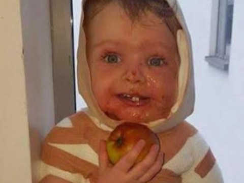 Toddler's body covered in burns after spilling mother's cup of tea on himself