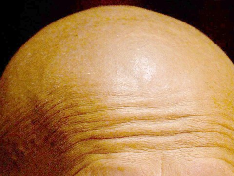 Going bald and grey at a young age could increase heart disease risk by five times, doctors warn