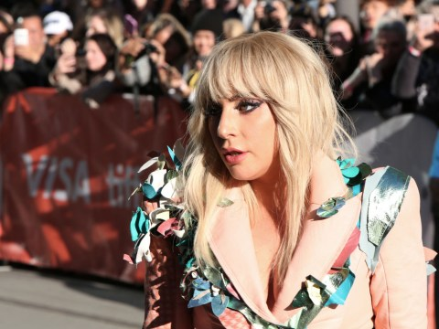 Lady Gaga stops concert after noticing injured and bleeding fan