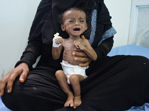 World's 'largest famine in decades' is on the verge of happening in Yemen