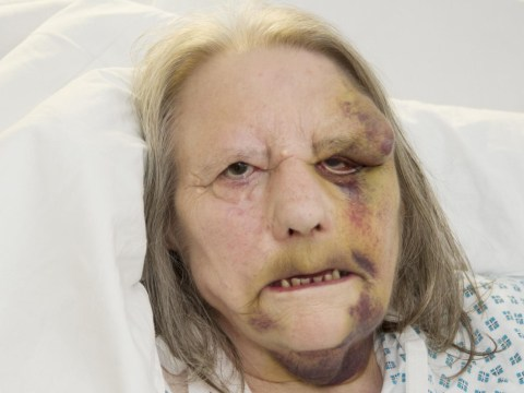 Thief stole elderly woman's pension after she collapsed in street
