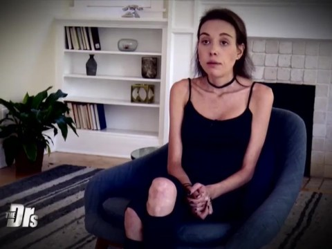 Anorexic woman begs doctors for help after weight plummets